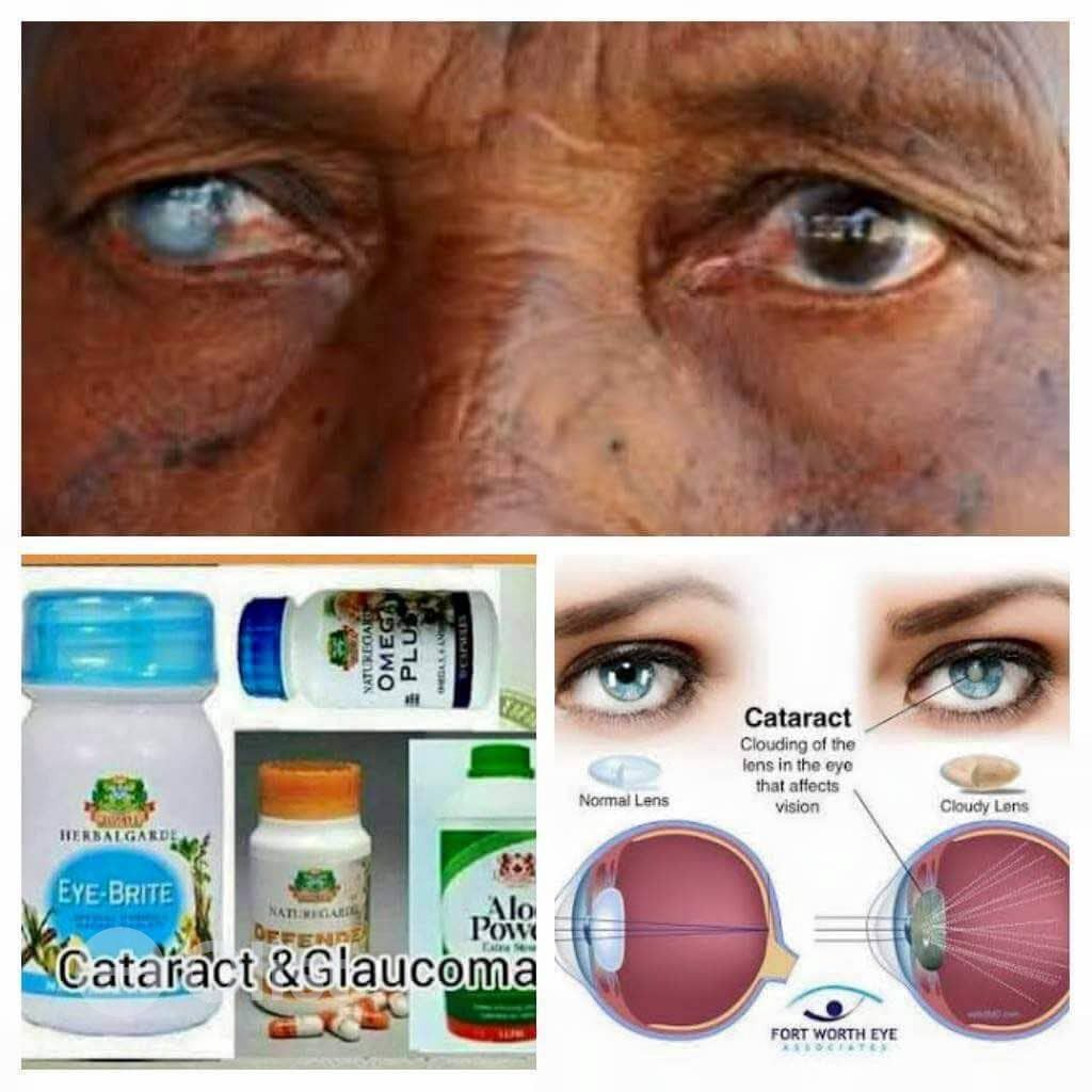 Cataract and glaucoma cure pack